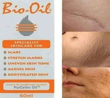 Bio-Oil -60ml - South Africa