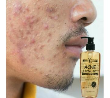Yc acne facial gel- Thailand