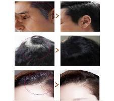 Black Hair Shampoo 10 Pcs Package বাংলাদেশ - 6157603