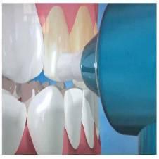 LUMA SMILE teeth Whiting Kit