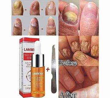 LANBENA Nail Repair Essence Serum 15ml - Korea