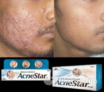 AcneStar Soap/Gel - 75 gram